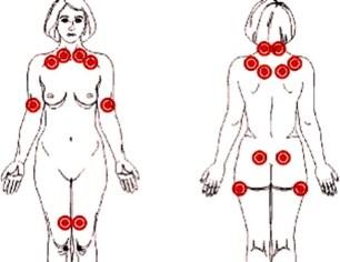 medicina-online-dott-emilio-alessio-loiacono-medico-chirurgo-roma-fibromialgia-dove-si-trovano-tender-riabilitazione-nutrizionista-infrarossi-accompagno-commissioni-cavitazione-radiofreq.jpg